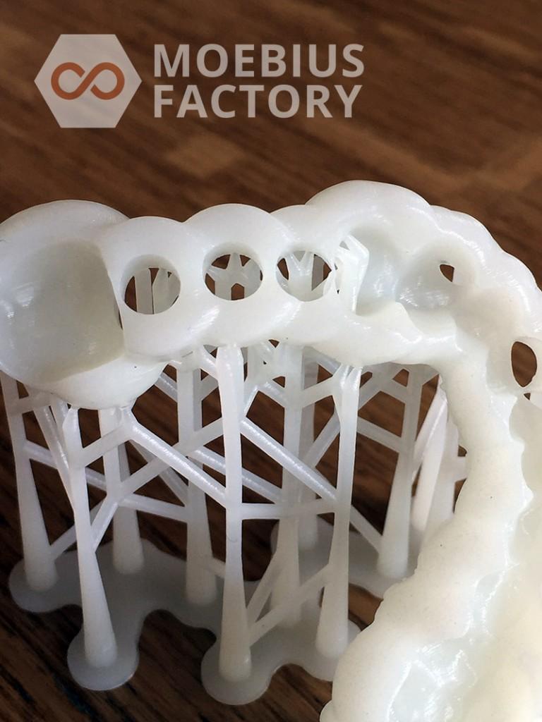 moebius-factory-guide-prothese-dentaire-imprime-en-3d-detail1